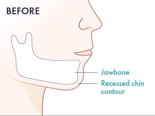 chin augmentation before