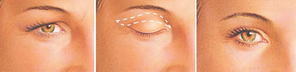 eyelid-surgery-lower-eyelid-incision