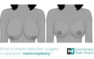 6-What-is-breast-reduction-surgery-or-reduction-mammoplasty-min