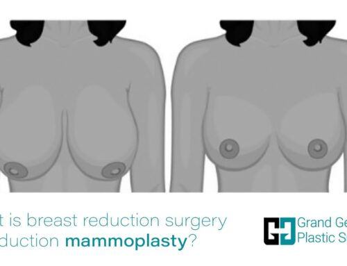 What is breast reduction surgery or reduction mammoplasty?