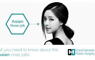 Asian nose jobs