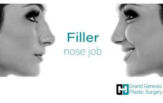 Filler nose job