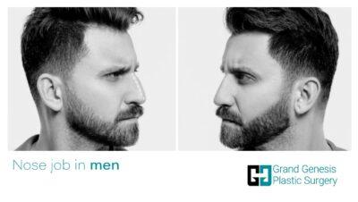 nose job in men