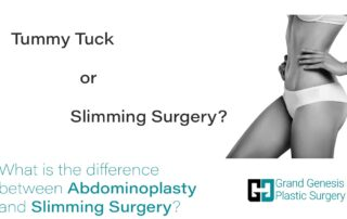 what is abdominoplasty