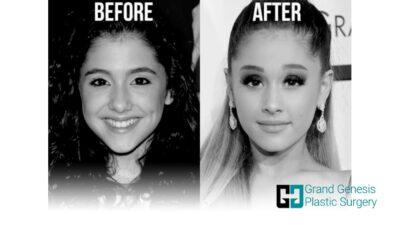 Ariana-Grande-nose-job