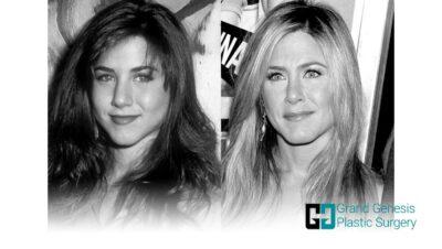 Jennifer-Aniston-nose-job-