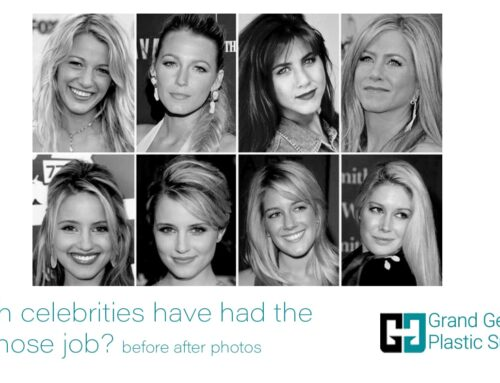 Which Celebrities have had the Best Nose Job? Before-After Photos