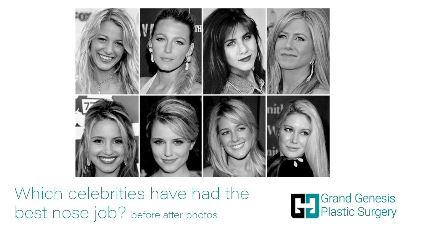 the best nose job of celebrities