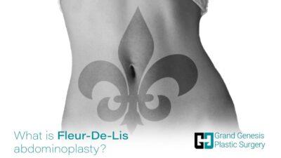 Fleur-De-Lis-abdominoplasty-