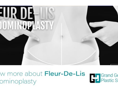 Know More About Fleur-De-Lis Abdominoplasty