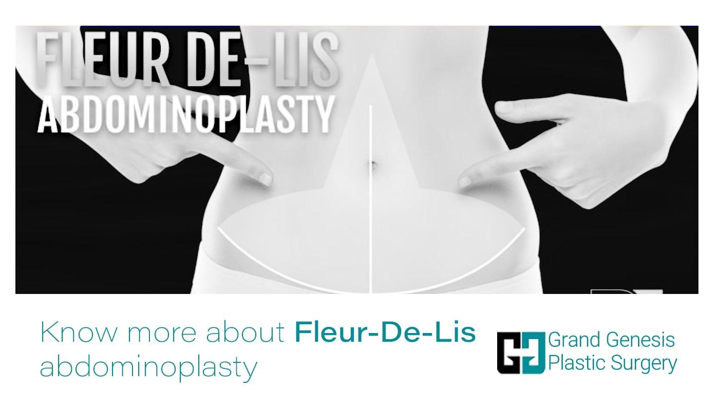Fleur-De-Lis-Tummy-tuck-