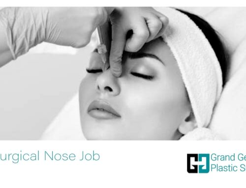 The NonSurgical Nose Job in Toronto | Methods, and Costs