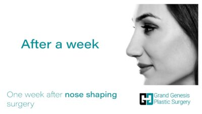 -One-week-after-nose-shaping-surgery