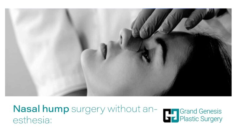 Nasal hump surgery without anesthesia