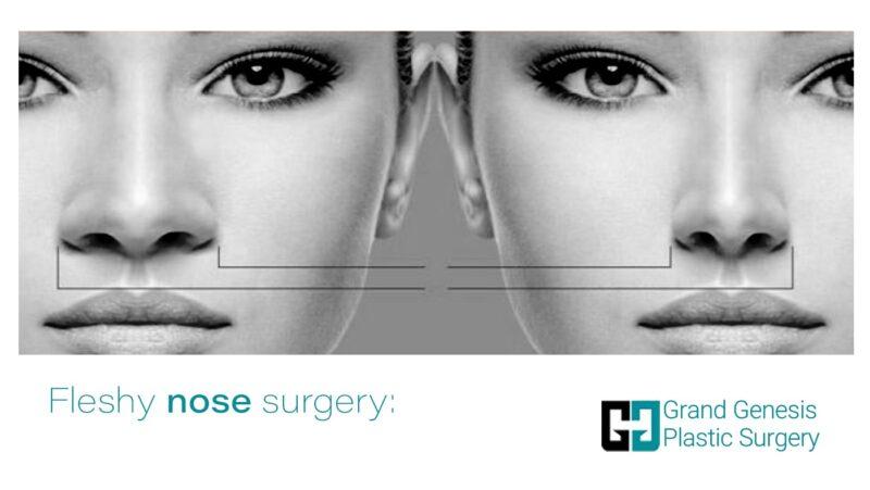 fleshy nose surgery