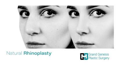 Natural Rhinoplasty