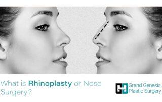 What is rhinoplasty