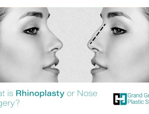 What is Rhinoplasty or Nose Surgery? | Nose Job in Toronto