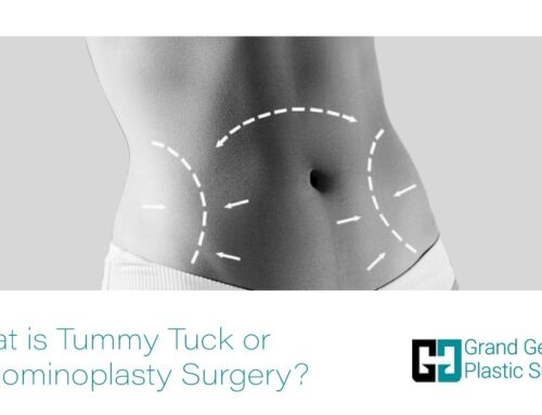 What is Tummy Tuck or Abdominoplasty Surgery?