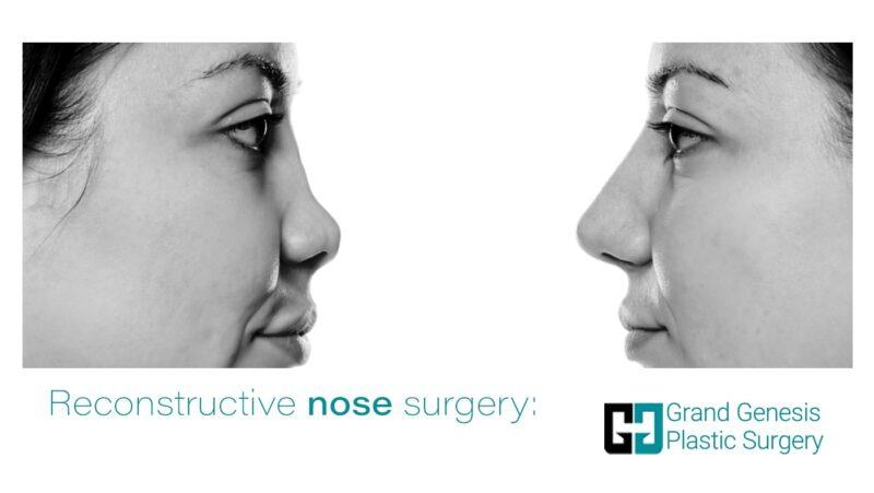 Reconstructive nose surgery