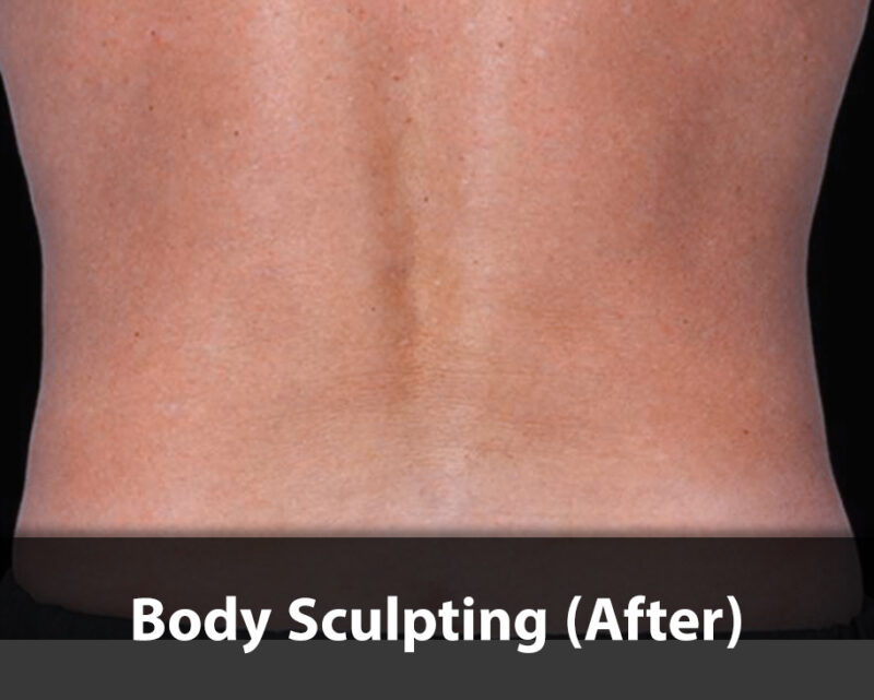 body sculpting after