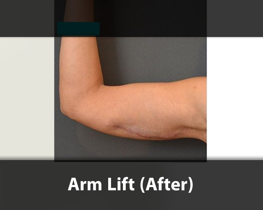 arm lift surgery after