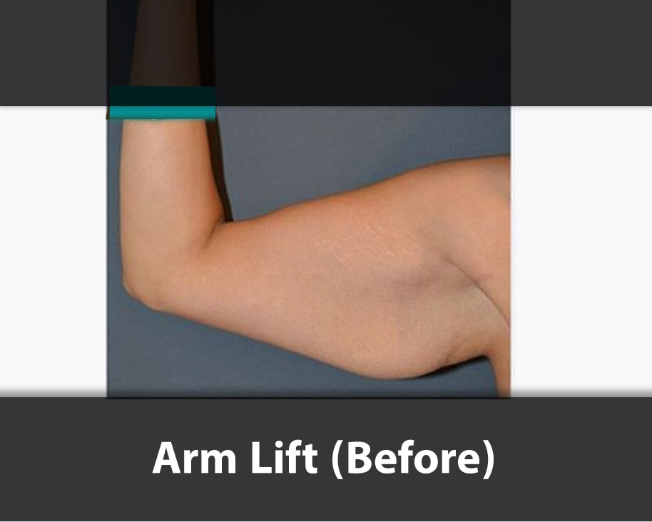 arm lift surgery before