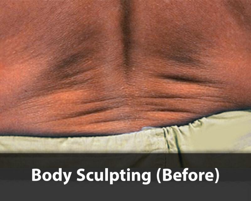 body sculpting before
