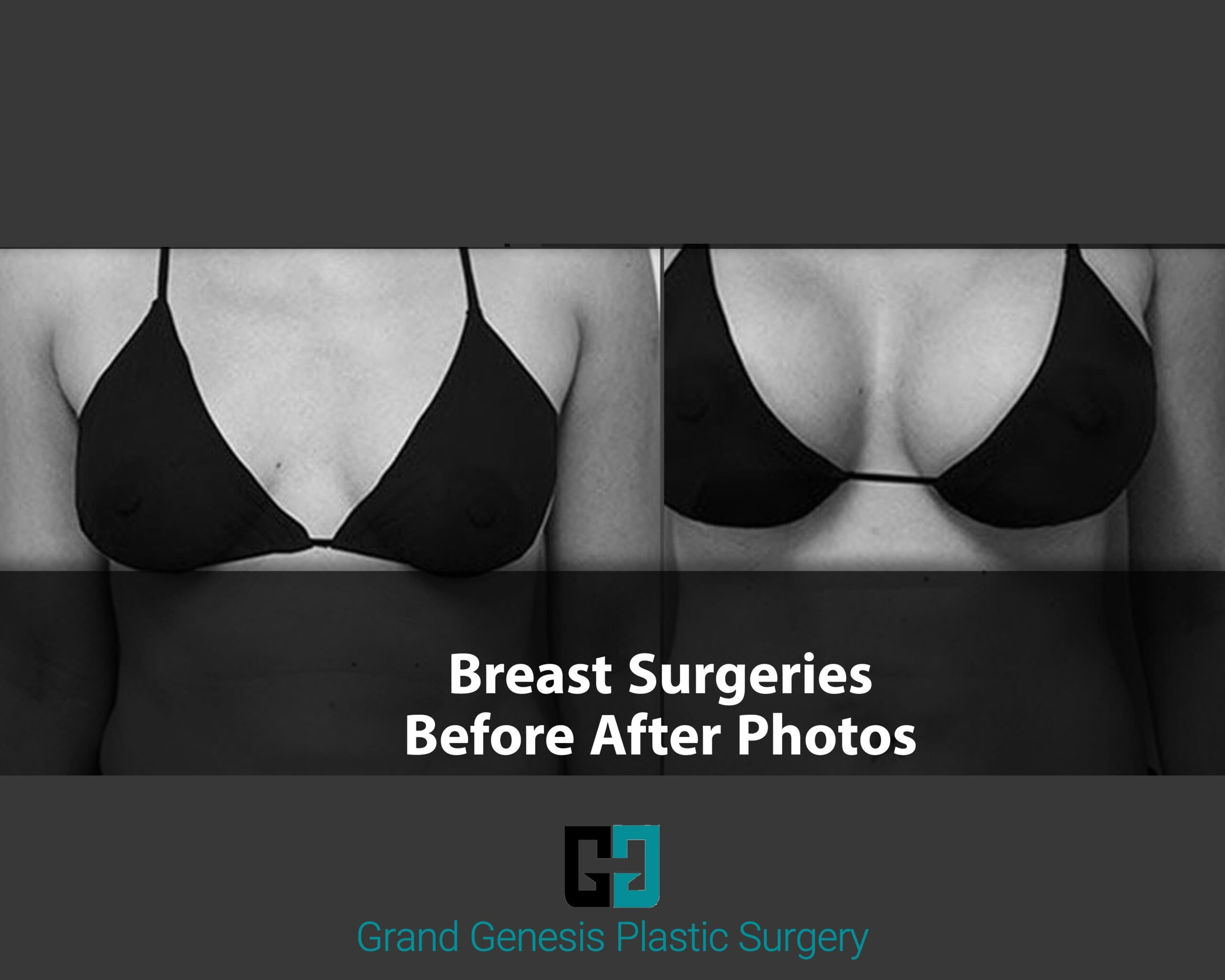 BREAST SURGERY BEFORE AFTER