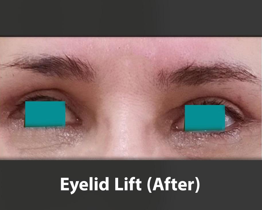 eyelid lift ater