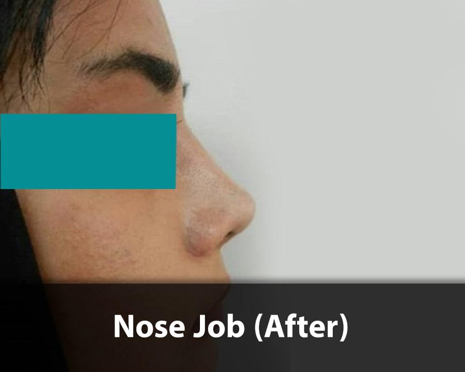 fantasy-nose-job-after