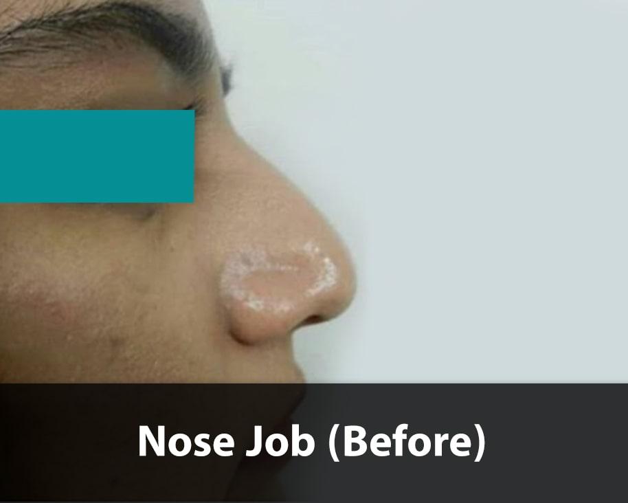 fantasy nose job before