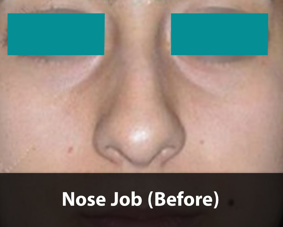 barbie nose job before