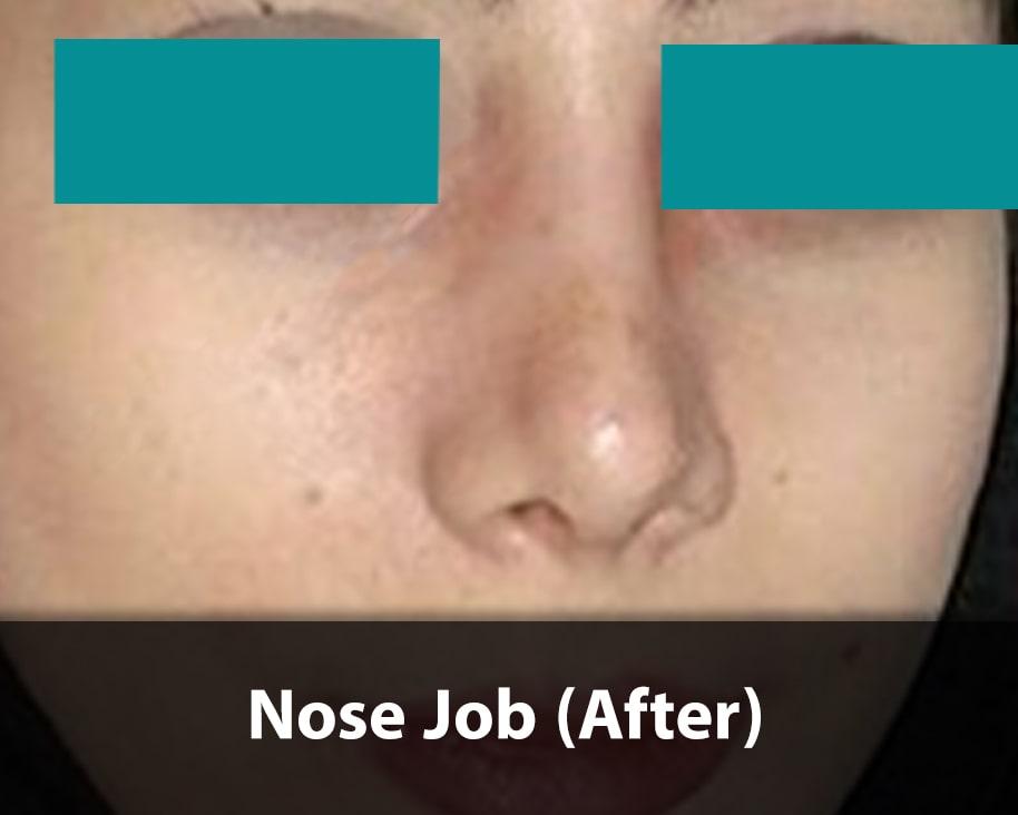 barbie nose job after