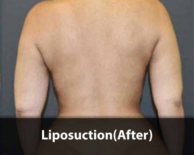 liposuction- after