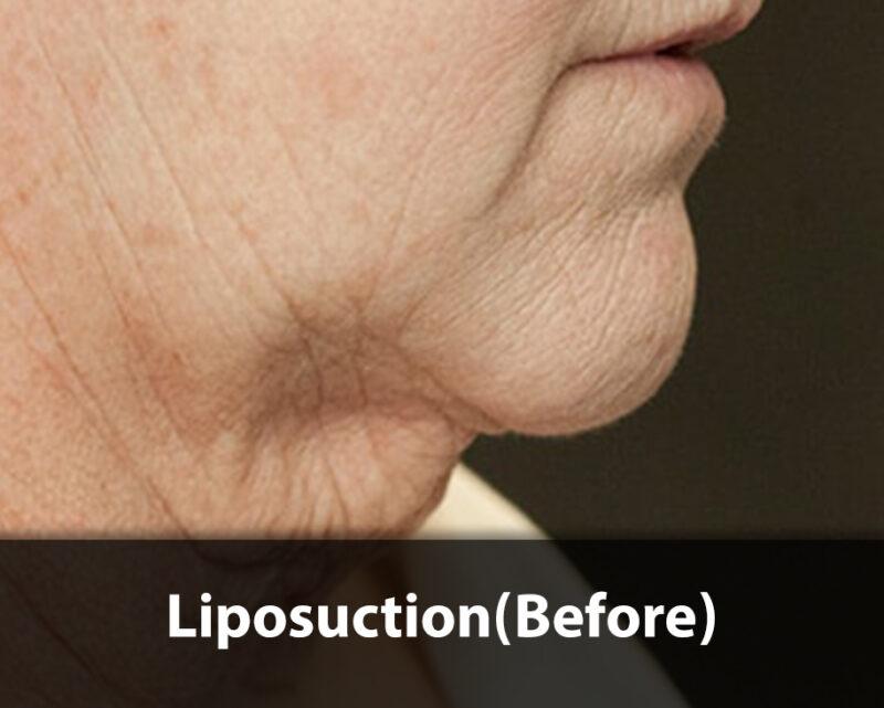 neck liposuction before
