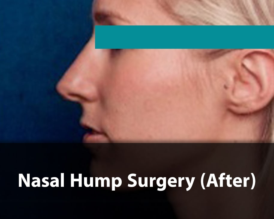 hump nose job after