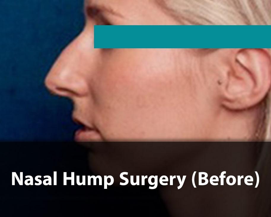 hump nose job before