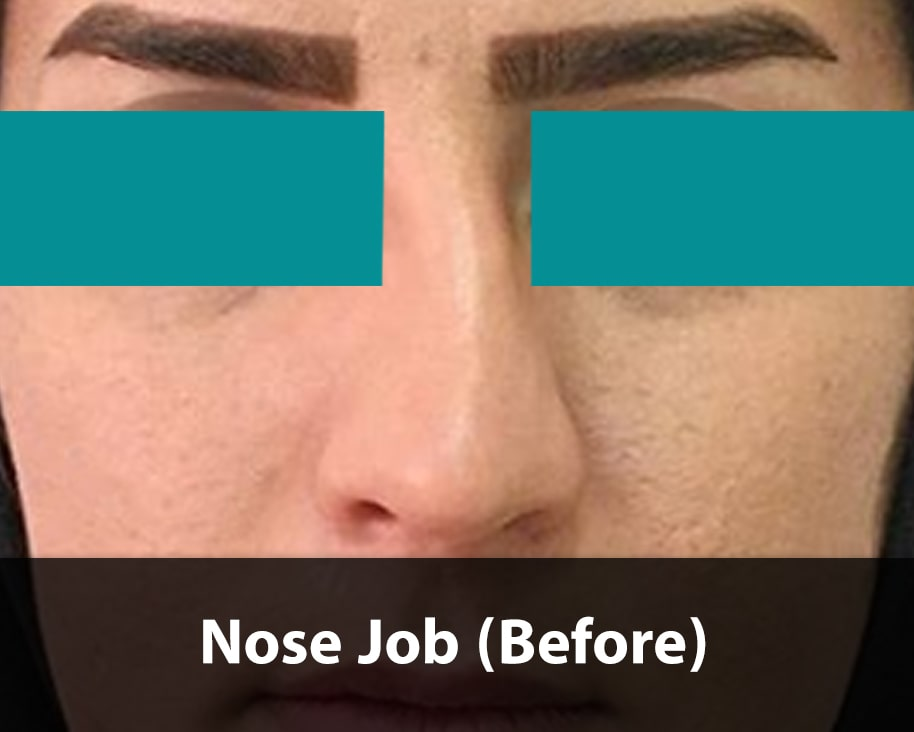 nose job before