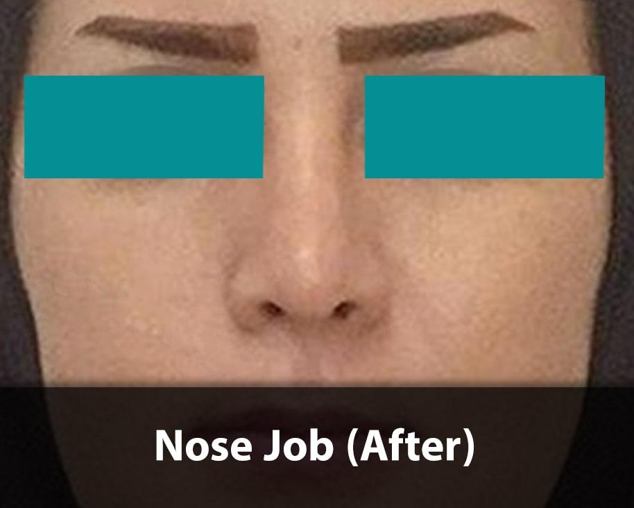 nose job after