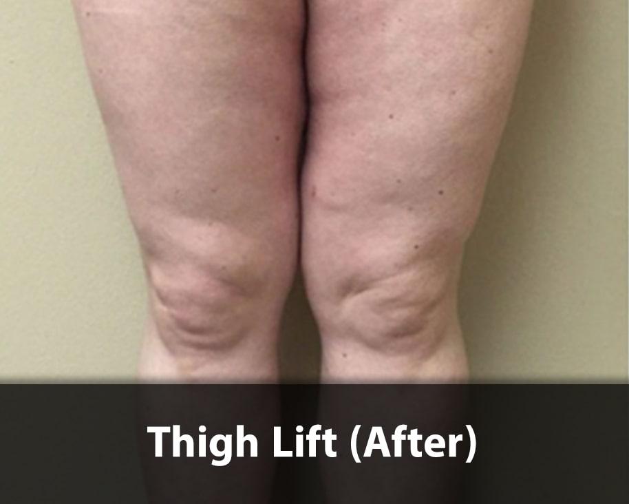 thigh-lift1-after