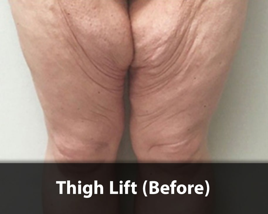thigh-lift1-before-