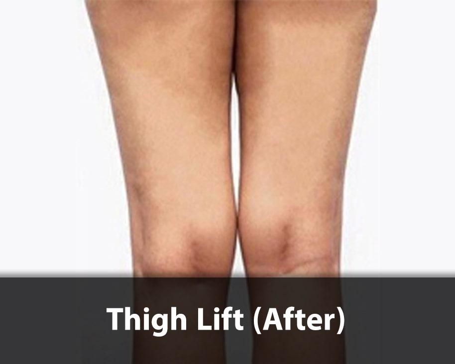 thigh lift surgery after