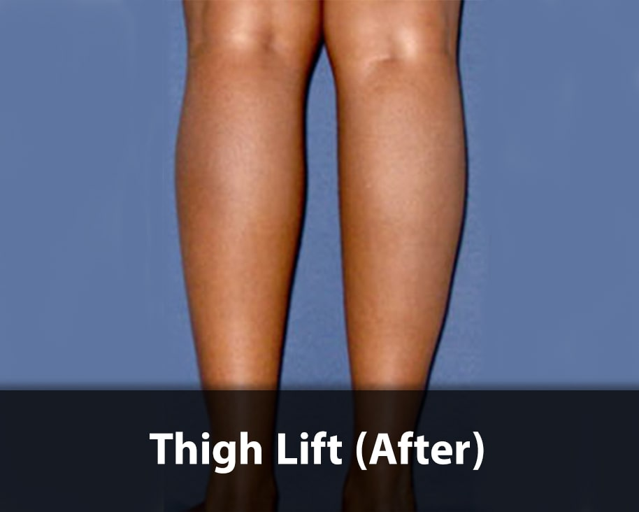 thigh-lift3-after