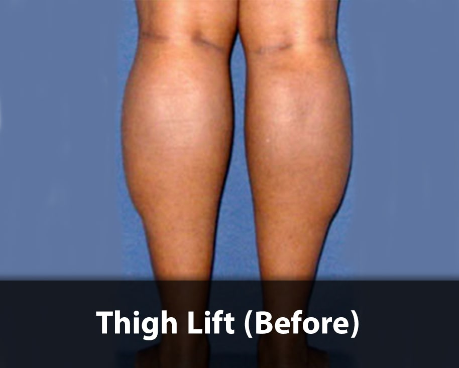 thigh-lift3-before