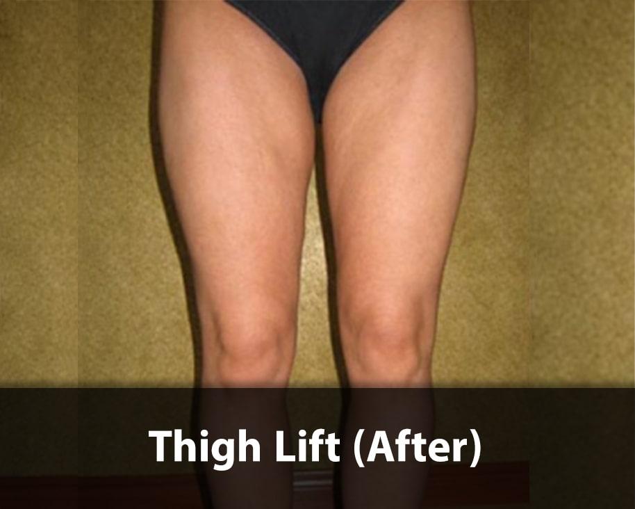 thigh lift AFTER
