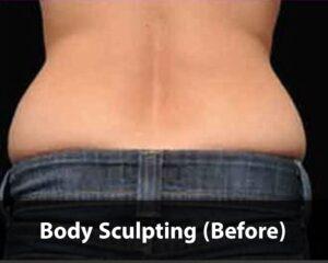 Body-Sculpting-before