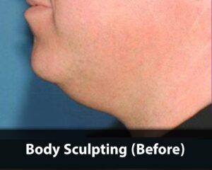Body-Sculpting-before-