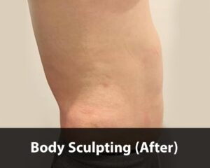 body-sculpting-2-after-