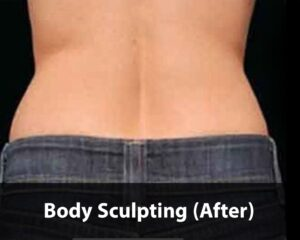 body-sculpting3-after-